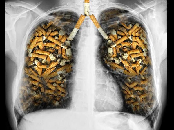 30-respiratorydiseases