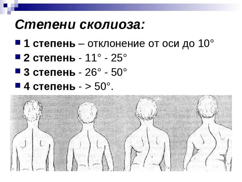 iskrivlenie-pozvonochnika(1)
